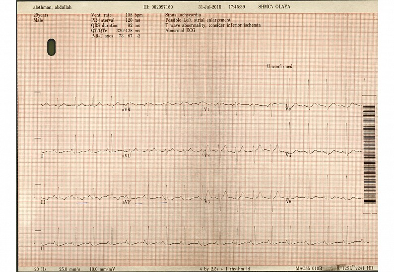 Abdullah Al Othman, The ECG from the No-Touch Torture series 2015, ECG Paper